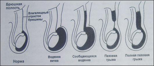 vodyanka-yaichka-kak-vliyaet-na-spermatozoidi