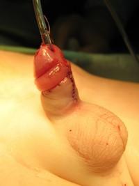 Гипоспадия - гипоспадия полового члена