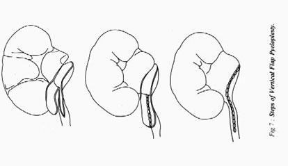 Этапы пластики лоханочномочеточникового сегмента вертикальным лоскутом лоханки
