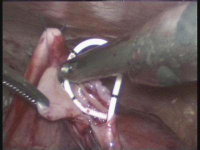 Установка внутреннего стента в мочеточник